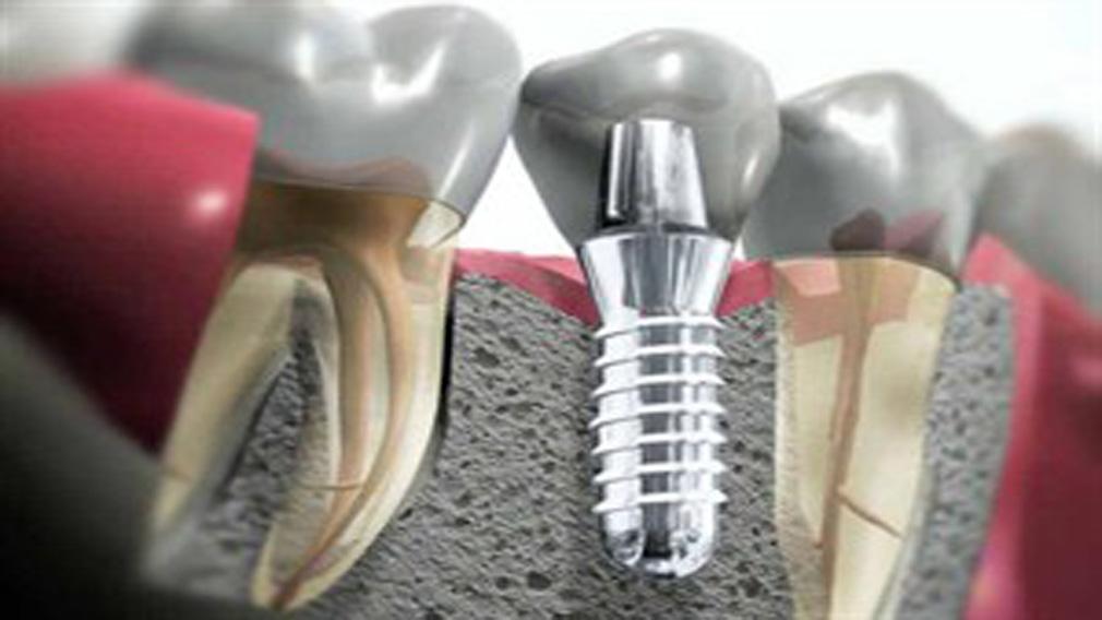 Οδοντική εμφυτευματολογία